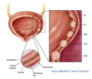 Actos Bladder Cancer