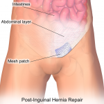 JAMA Study Finds Hernia Mesh Complications May Increase Over Time