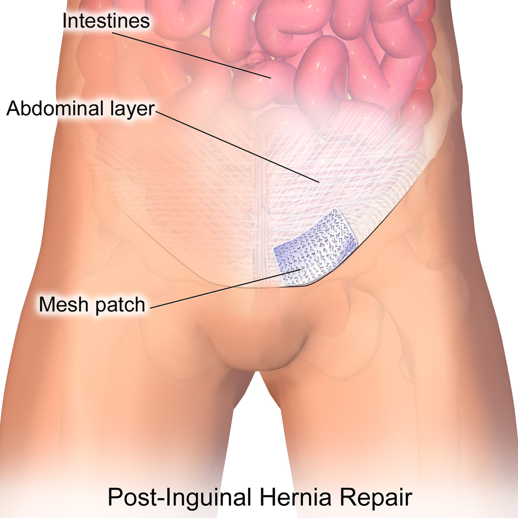 Hernia Mesh Repair May Cause Other Complications in Future