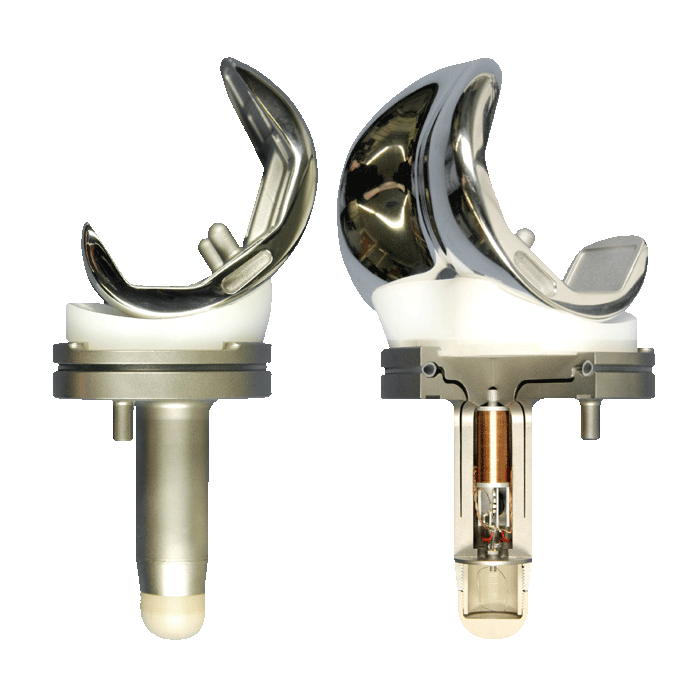 DePuy Knee Replacement Recall and Litigation | Saunders & Walker PA