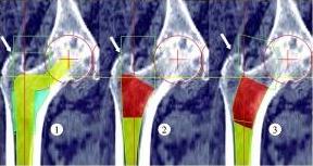 The Johnson & Johnson Depuy artificial hip implant