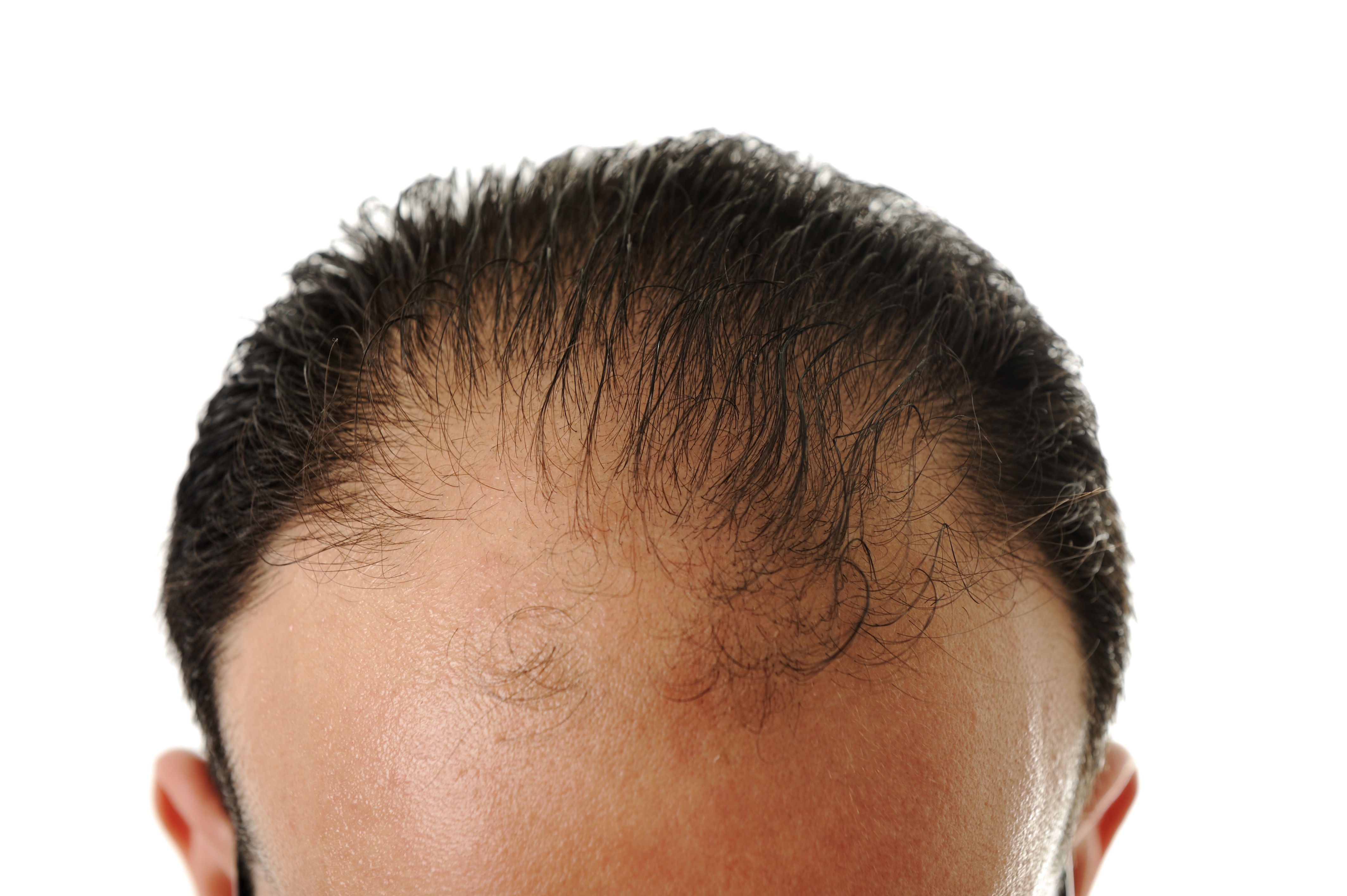 man experiencing male-pattern baldness