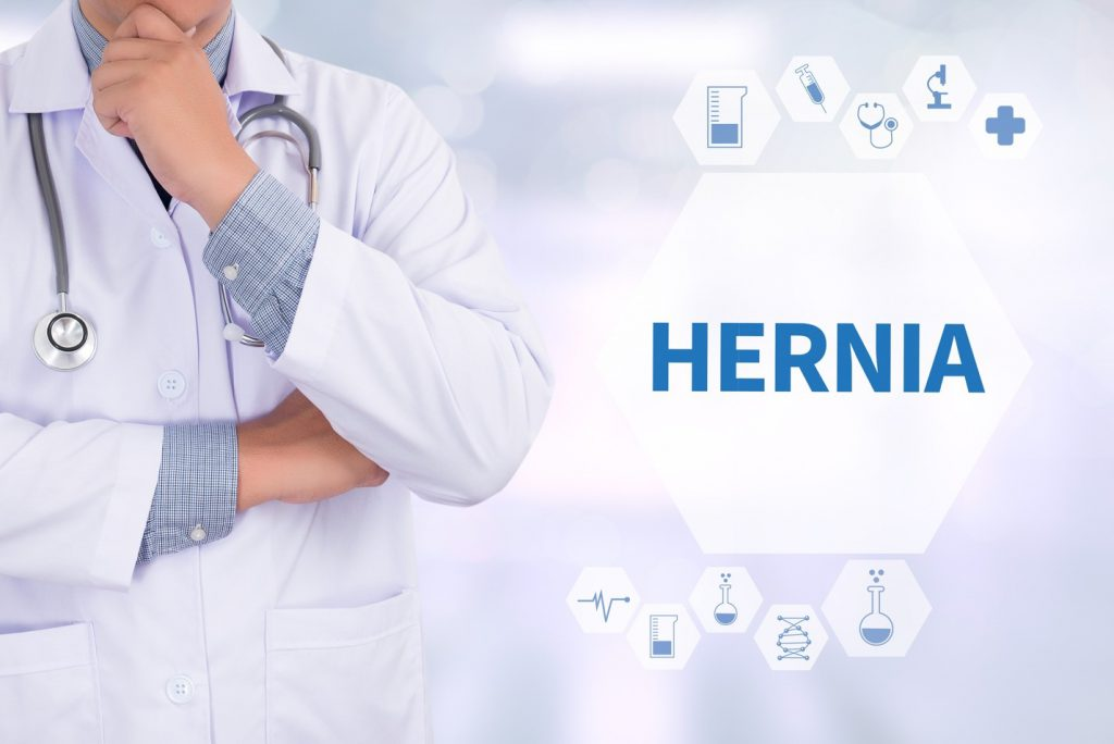 doctor thinking how to treat a hernia