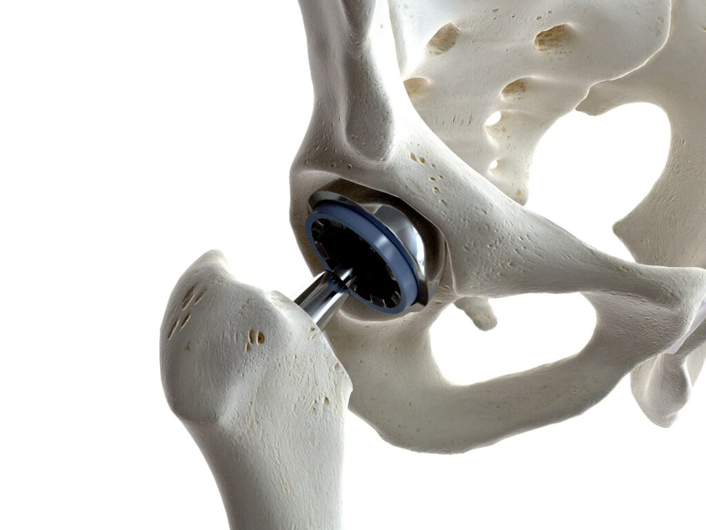 A 3D rendered illustration of the Wright medical hip implant in the body.
