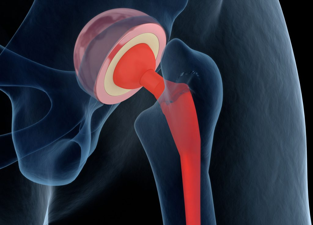 A 3d rendering of a hip replacement implant in the body.