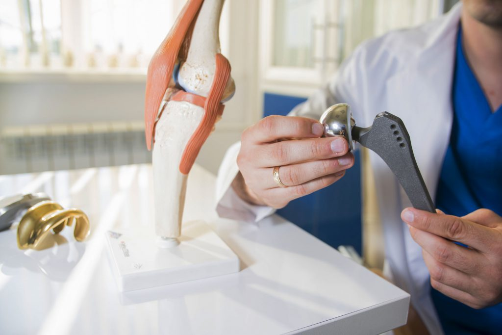 A surgeon holding a hip replacement implant model.